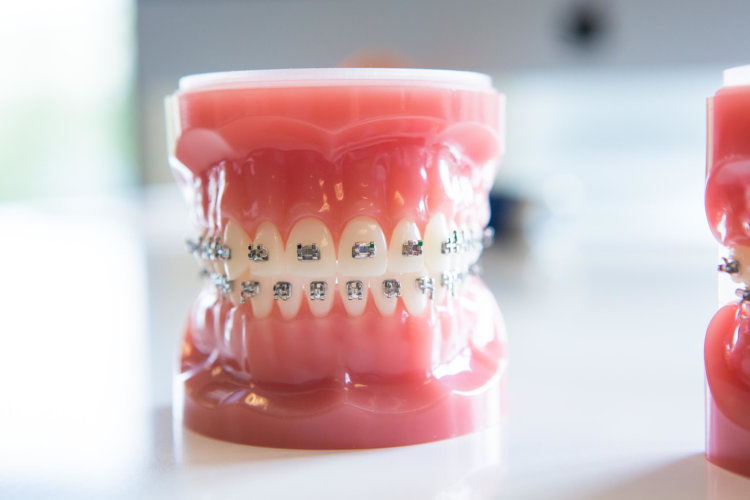 Freeman-Orthodontics-Braces-Treatment-37-thegem-gallery-metro