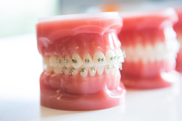Freeman-Orthodontics-Braces-Treatment-43-thegem-gallery-metro