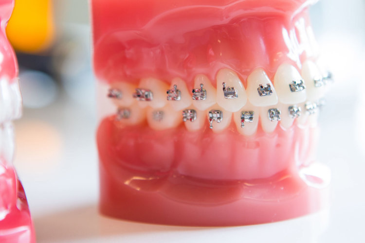 bracket-replace-thegem-gallery-metro  - Braces and Invisalign in San Jose California - Freeman Orthodontics